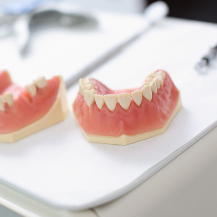 ODs Dental Laboratory- Tustin, CA- Denture Accessories