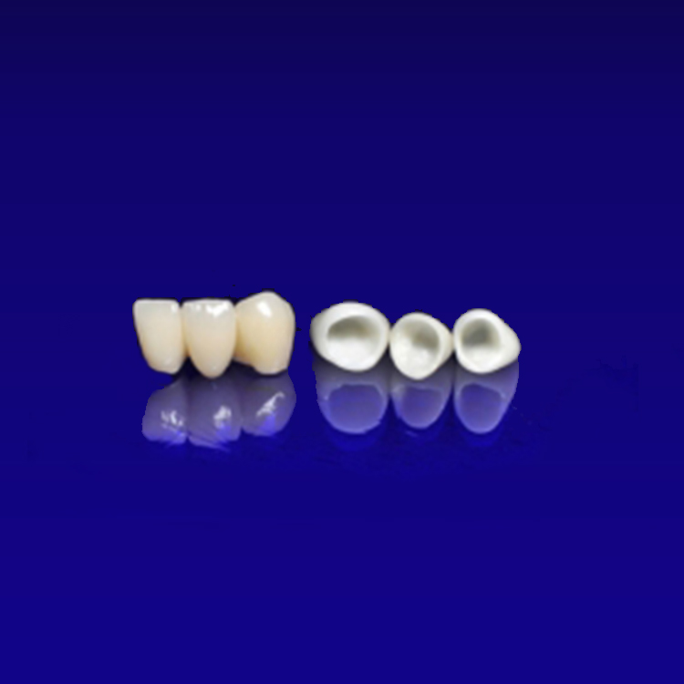 ODs Dental Laboratory- Tustin, CA- Metal-Free Dental Crowns